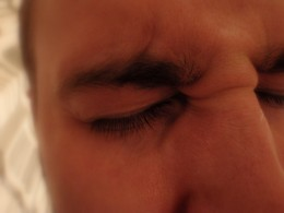 Approximately 28  to 36 million people in the United States alone experience migraine headaches.