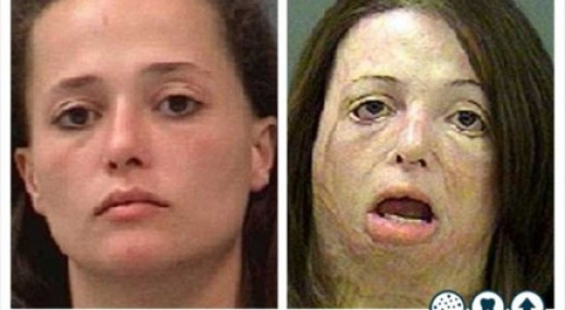 VERY beautiful-WAIT, HOLD ON, WHAT?? That doesn't even look real. BUT, it is. Meth can really ruin such a pretty ladies look that badly. And women look in the mirror and think they're ugly.