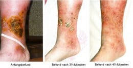 Leg ulcers can be a complication of varicose veins.