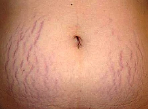 stretch marks on stomach how to get rid