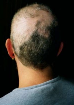 Trichotillomania results in baldness and breakage of hair.