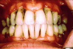 Periodontitis or Gingivitis - Which Gum Disease Do You Have?