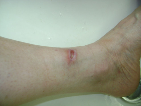 9/7.  Stinging & pain occurring from nerve repair. Circulation returning to the area.
