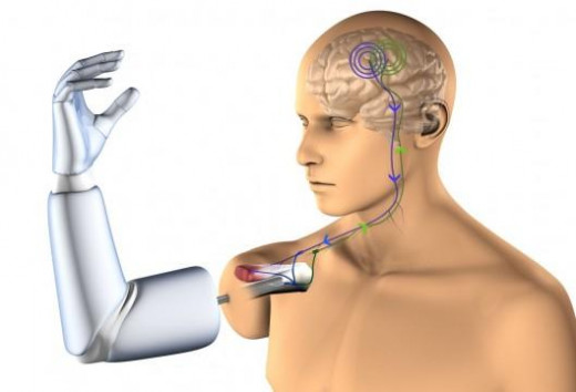thought control-robotic arm