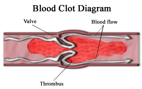 A vein showing a blood clot that is slowing down the circulation of blood.