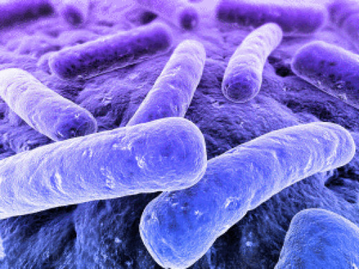 """Bacterial rods growing on tissue surface. These rods belong to the group of so-called """"GRAM-negative rods"""". Many of the GRAM-negative rods are sepsis-causing bacteria. Because of their sophisticated antibiotic resistance mechanisms."""