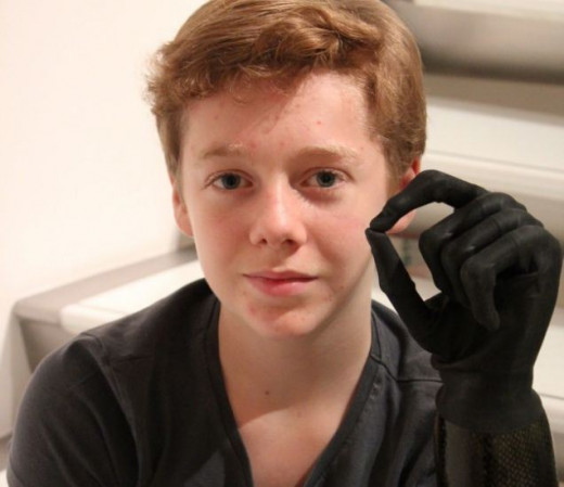 A 15 year old  lost his right leg and left hand to sepsis. He now has a bionic arm (Picture: Global Sepsis Alliance)