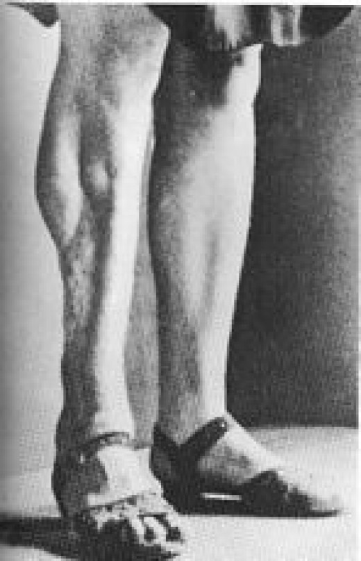 A victim of Nazi experiments where doctors would simulate battle wounds on patients/prisoners.