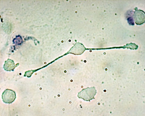 "A macrophage extending its ""arms"" to reach  and engulf pathogens. Macrophages make fibronectin."