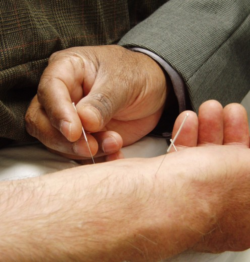 Acupuncture needles being inserted into a patient's skin.
