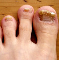 Home Remedies Nail Fungus, Simple, Safe, Effective