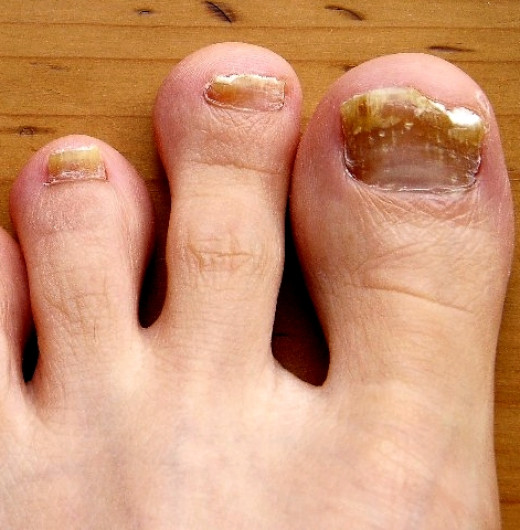 Nail fungus causes brittle and unsightly nails and is very hard to cure