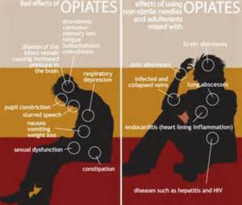 These are the bad effects of opiate use/addiction and also the long-term effects of opiate addiction..