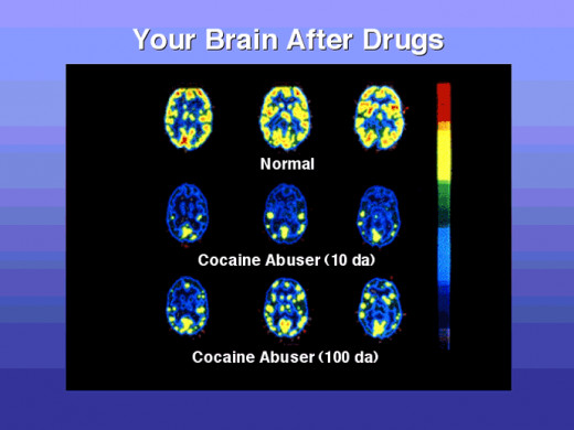 A scan of the human brain and how cocaine changes it