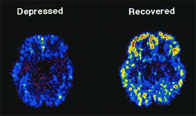 The brain scans of people who suffer from depression are different from people who don't have depression