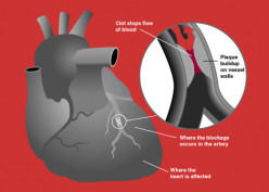 What is the difference between a cardiac arrest and a heart attack?