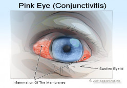Home Remedies for Pink-Eye / Conjunctivitis