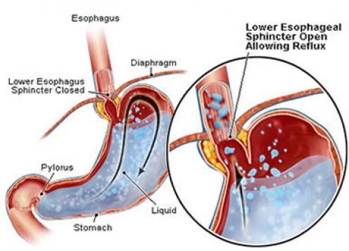 Heartburn Treatment Children Yeast Infection