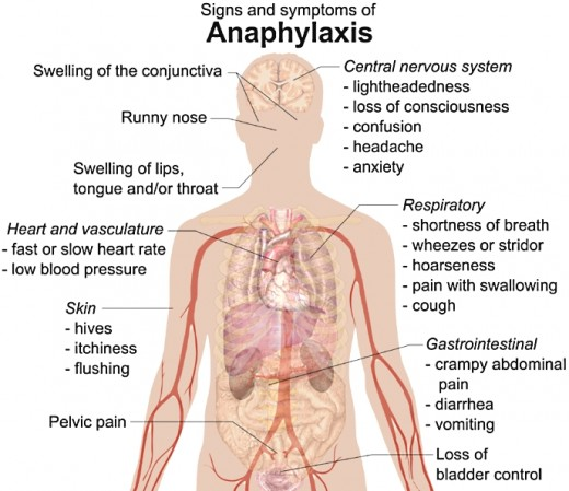 Signs and_symptoms of anaphylaxis
