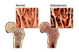 Early Detection of Bone Loss