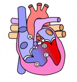 Tetralogy of Fallot: A Congenital Heart Disease