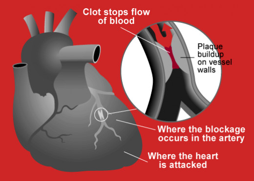 Heart attack diagram: An example of an infographic