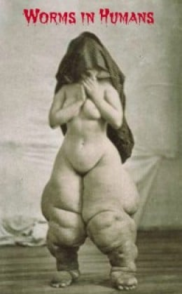 Worms in humans: clinical portrait  of elephantiasis caused by the roundworm filariodidea.