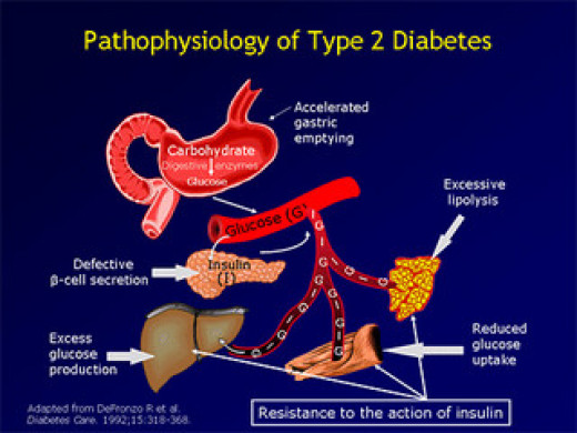What year will diabetes be cured permanently