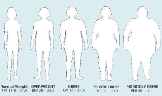 Obesity BMI Chart