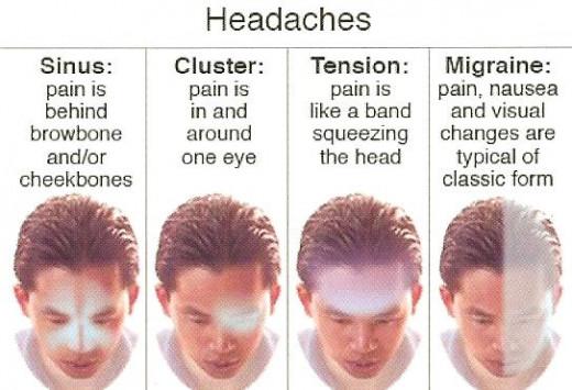 Migraines hormonal