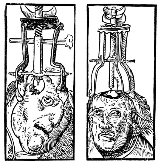 Trepanation of the skull to relieve pressure and/or fluid.