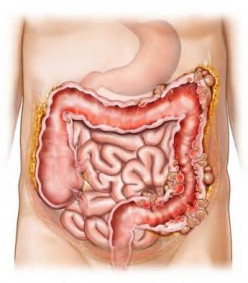 Diverticulitis: Signs and Symptoms from my experience