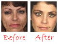 Makeup Tips For Meth Addicts