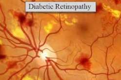 How to Lower Your Risk for Diabetic Retinopathy
