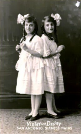 Daisy and Violet Hilton, conjoined twins.