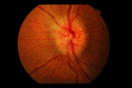 swelling of the optic disc in optic neuritis