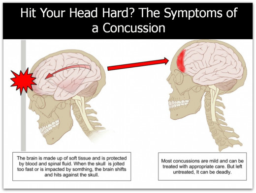 Have you hit your head hard and don't feel quite right? You may have a ...