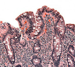 Biopsy of a small bowel showing celiac disease manifested by blunting of villi