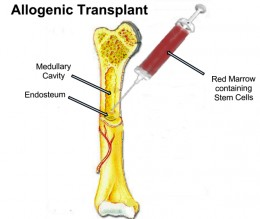 Allogeneic transplant is just one form of BMT.