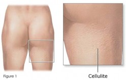 The Science of Cellulite