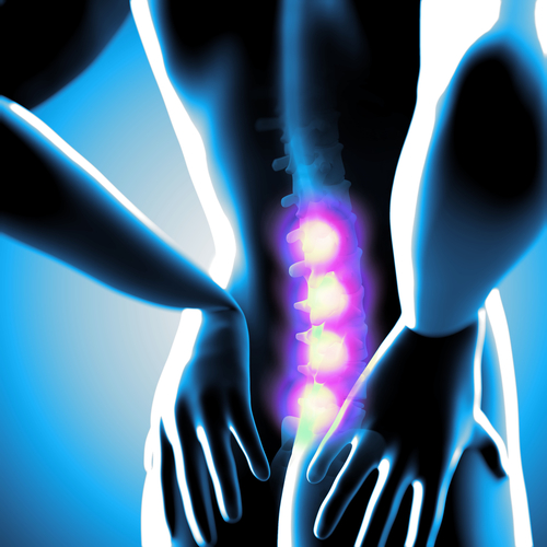 The low success rate for people who undergo back surgery has led to an increase in patients with chronic pain.
