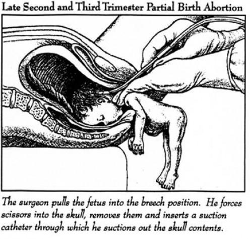 Aborted human fetal