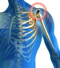 What are the Common Forms of Joint Pain