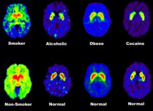 These PET brain scans show that that addicts have fewer than average dopamine receptors in their brains, so that weaker dopamine signals are sent between cells.