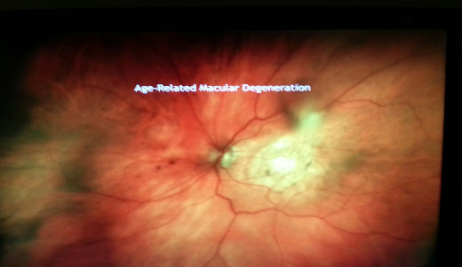 A retinal photo that shows a hole caused by Macular Deneration.