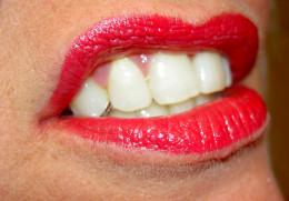 Grinding the teeth