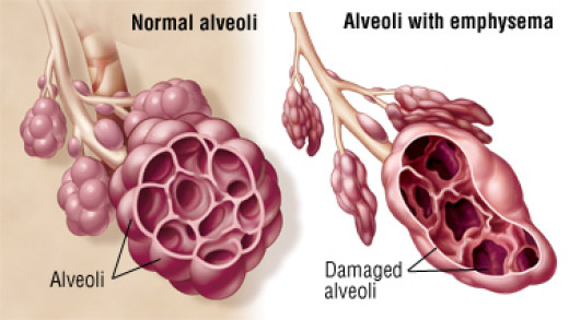 Damage to the alveoli