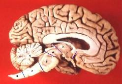 1. Cerebrum 2. Thalamus 3. Hypothalamus 4. Mesencephalon - Midbrain 5. Pons 6. Cerebellum 7. Medulla oblongata 8. Medulla spinalis