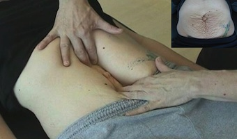 Diastasis recti - separation of abdominal muscles