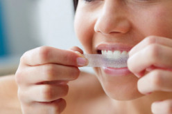 Do Crest Whitening Strips Work? How does it work?